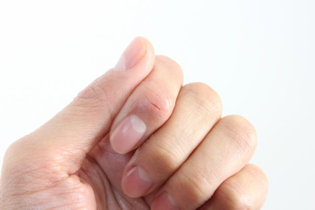 指先の火傷(やけど)完治までの全経過、やってはいけない事とは。